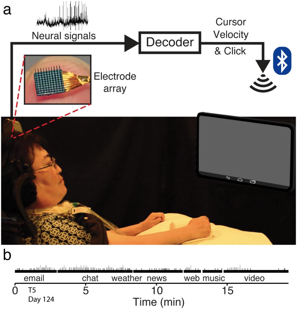 Beyin implantı, felçli hastaların bilgisayar kullanımı